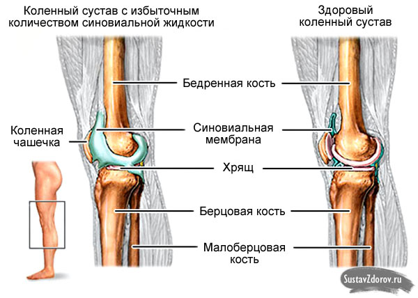 После замены коленного сустава скапливается жидкость