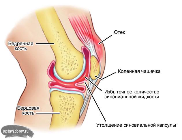 Коленный сустав жидкость лечение реактивный выпот в полости сустава