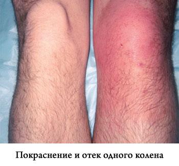 Отек коленного сустава зашлаковка суставов