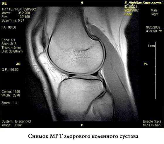 снимок МРТ здорового коленного сустава