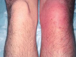 Из сустава вытекает жидкость почему болит сустав в паху