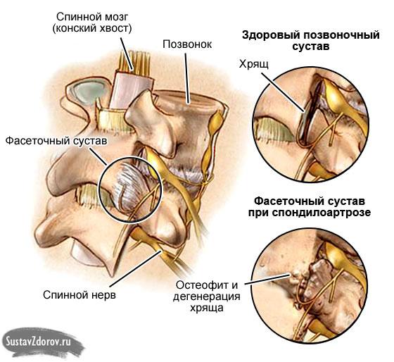 спондилоартроз позвоночника, фасеточные суставы