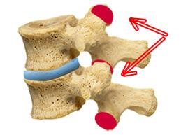 поражение фасеточных суставов при спондилоартрозе
