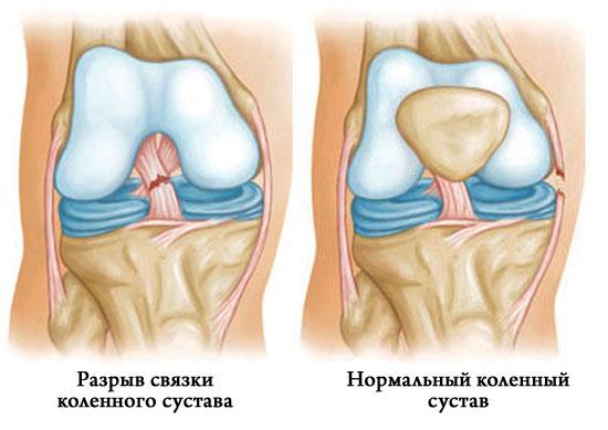 Изображение - Наружный разрыв связок коленного сустава 293-1