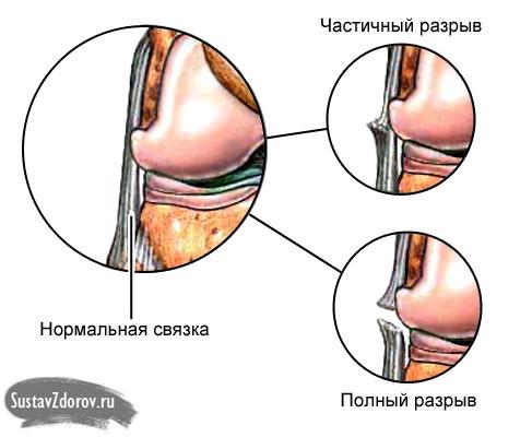 частичный и полный разрывы связок коленного сустава