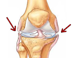 Механизм разрыва связок коленного сустава, симптомы и лечение патологии