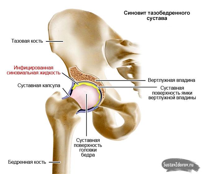 Экссудативный синовит причины симптоматика и лечение