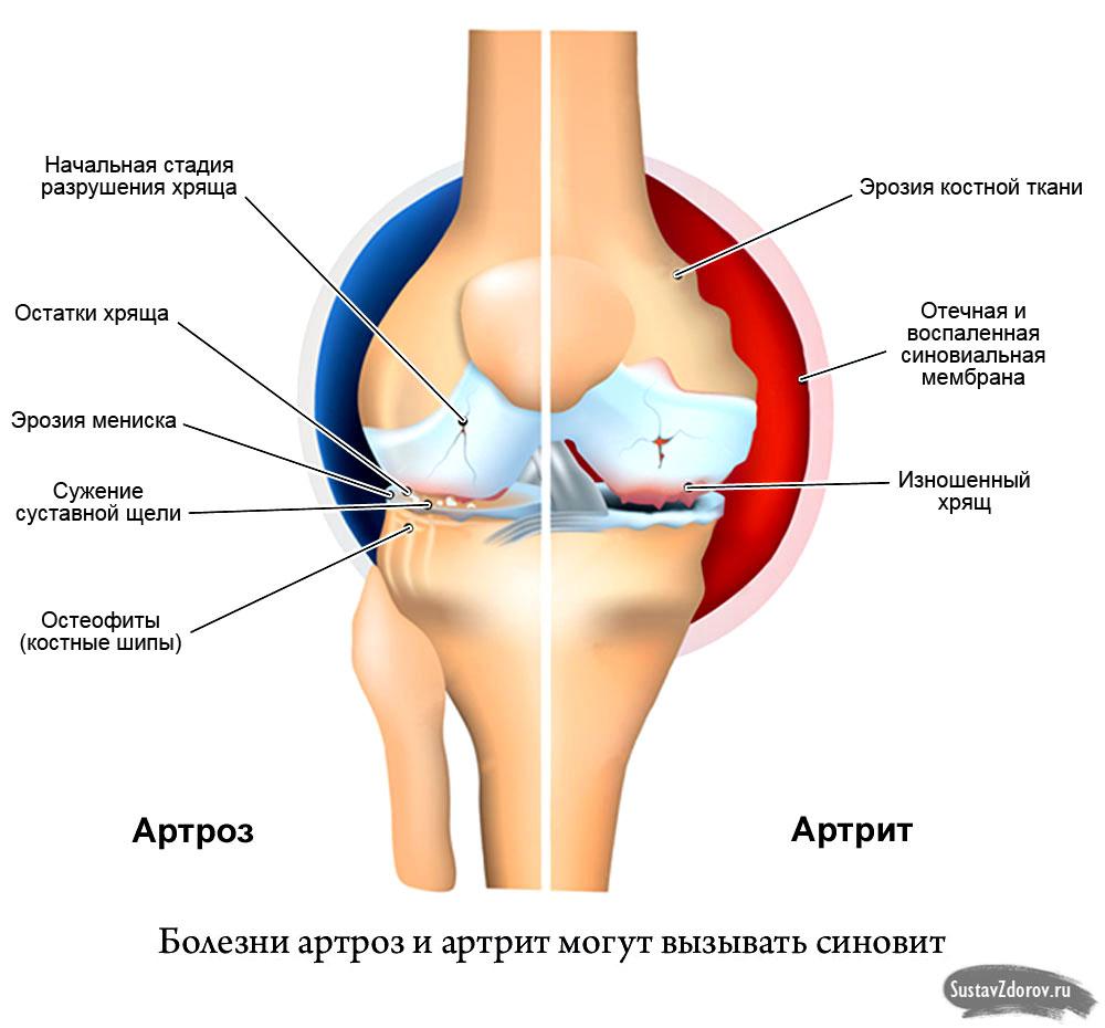 Утолщение синовиальной оболочки тазобедренного сустава опух сустав на среднем пальце руки что делать