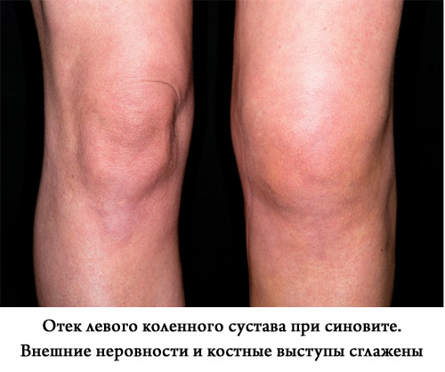 отек коленного сустава при синовите