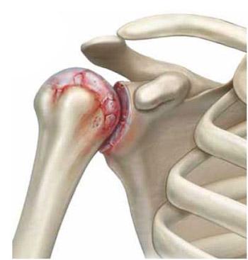 Изображение - Почему болит правое плечо внутри в суставе 255-3