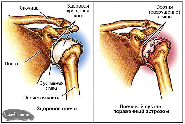 Изображение - Правого плечевого сустава 255-4