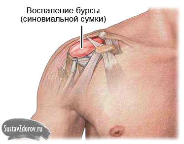 Изображение - Правого плечевого сустава 255-5