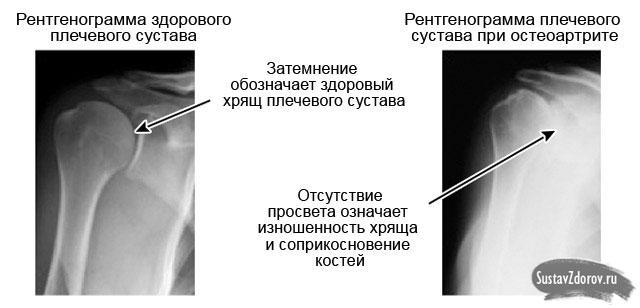 рентгеновский снимок здорового плеча и пораженного артрозом