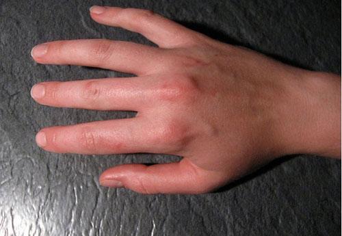 ревматическое поражение суставов пальцев рук