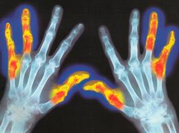 симметричное поражение суставов при ревматизме