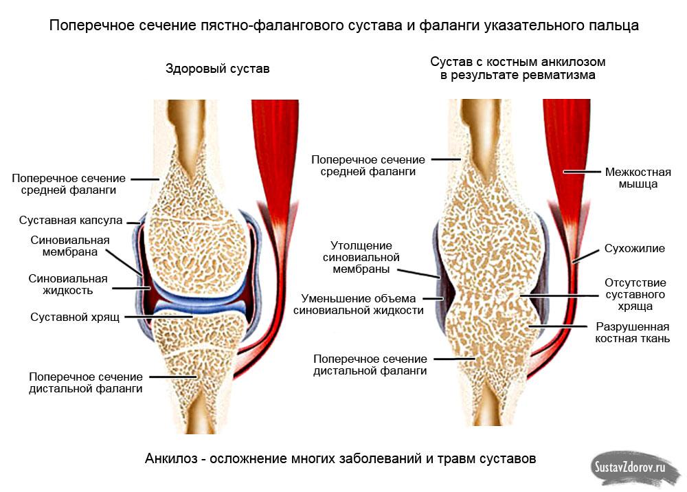 Народные методы лечения анкилоза суставов стоимость операции по замене коленного сустава челябинск