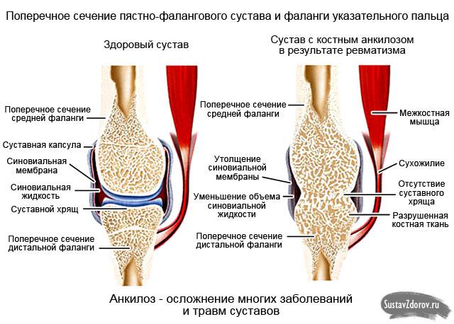 нормальный сустав и пораженный анкилозом