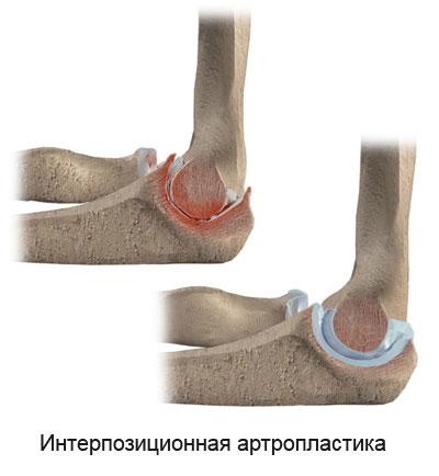 артропластика суставной поверхности