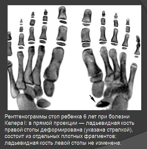 рентгенограмма стопы при болезни Келлера I