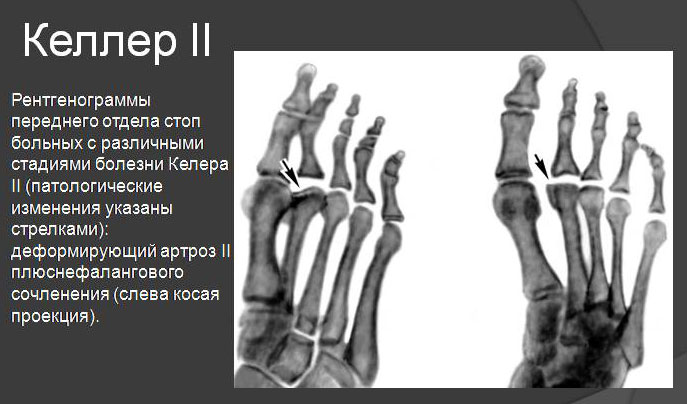 рентгенограмма стопы при болезни Келлера II