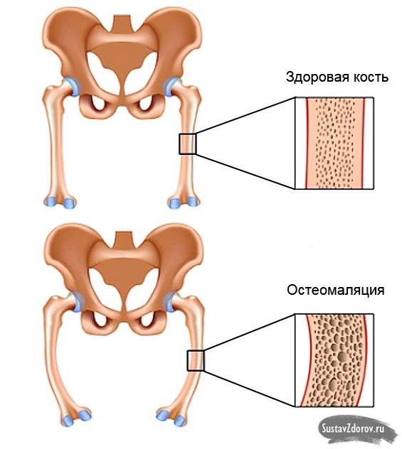 сравнение здоровой кости и пораженной остеомаляцией