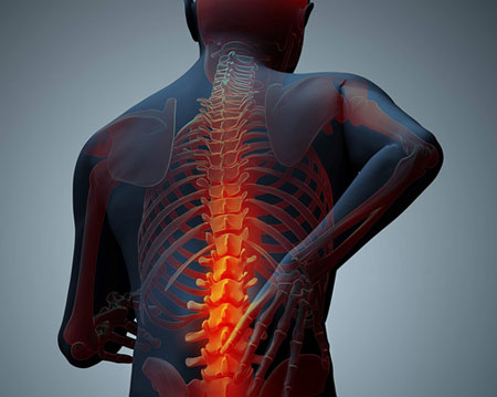 болевой синдром при остеомаляции