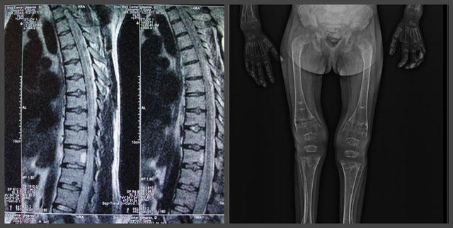 рентгенологические признаки остеомаляции