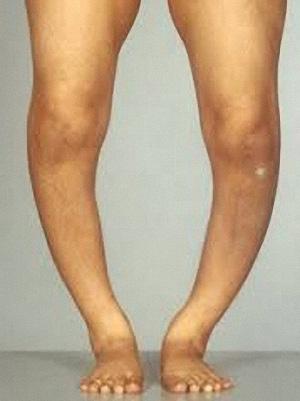 деформация ноги при остеомаляции