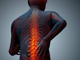 распространение боли при остеомаляции