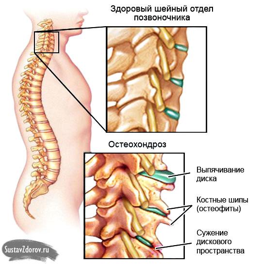 Остеохондроз шейного отдела: причины, симптомы, диагностика и лечение