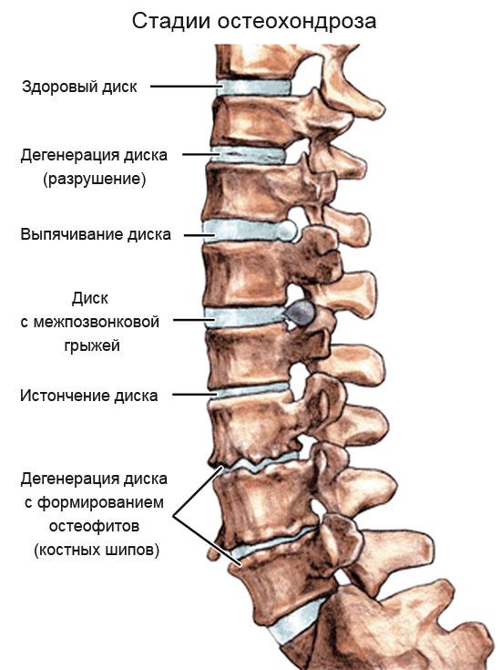 Остеохондроз: симптомы лечение диагностика