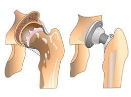 пораженный тазобедренный сустав и эндопротез