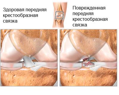 нормальная передняя крестообразная связка и поврежденная