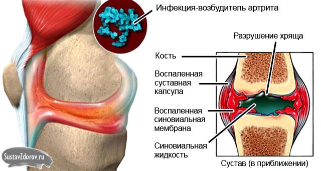 артрит, вызванный инфекцией