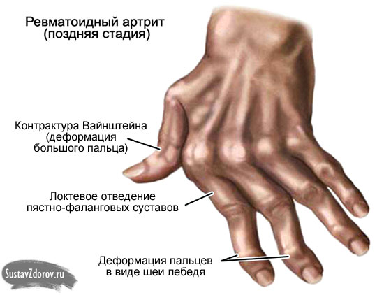 деформация кисти руки на поздних стадиях ревматоидного артрита
