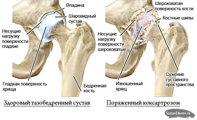 здоровый тазобедренный сустав и пораженный коксартрозом