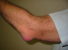 Характеристика бурсита: суть, причины, виды, симптомы и лечение