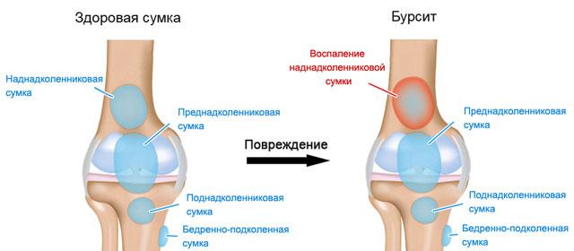 нормальный коленный сустав и бурсит коленного сустава