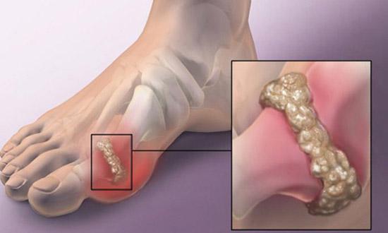 кристаллы мочевой кислоты на большом пальце стопы