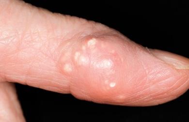 Подагра: симптомы и лечение (полный обзор)