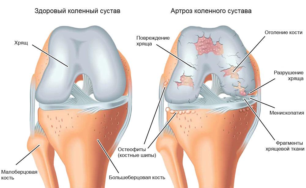 артроз и эндометриоз