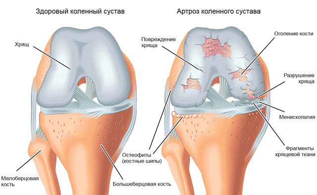 здоровое колено и колено пораженное артрозом