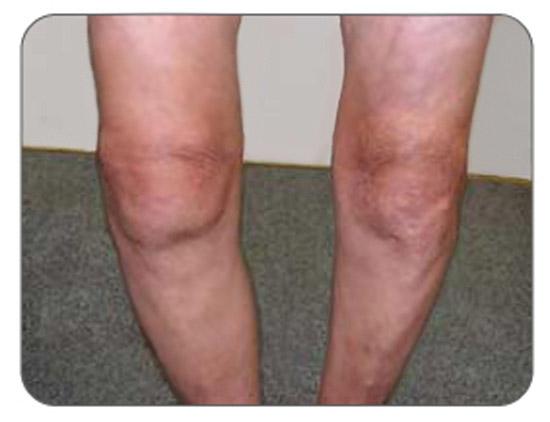 отек коленного сустава при артрозе