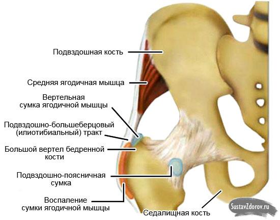 Трохантерит тазобедренного сустава: симптомы и лечение