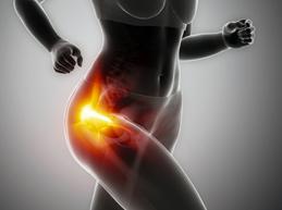 Полная характеристика трохантерита тазобедренного сустава: симптомы и лечение