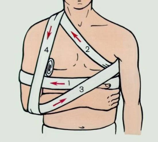 иммобилизация локтевого сустава при помощи повязки Дезо
