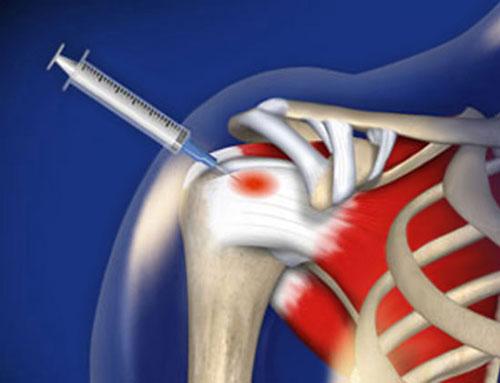 инъекция лекарства внутрь плеча