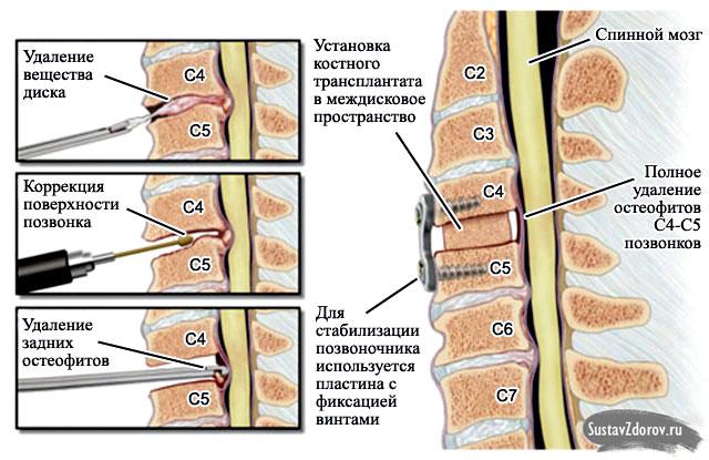 операция по удалению остеофита в шейном отделе позвоночника
