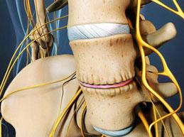 Причины остеофитов, возможная локализация, диагностика и лечение