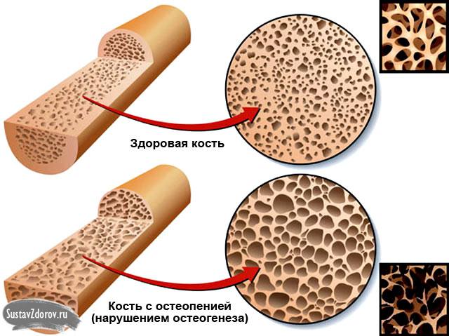 нормальная кость и остеопения